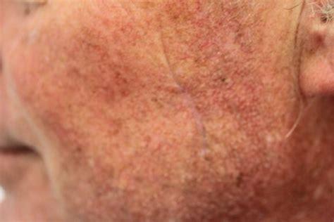 nodular ulcerating (bcc) | nodular basal cell carcinoma