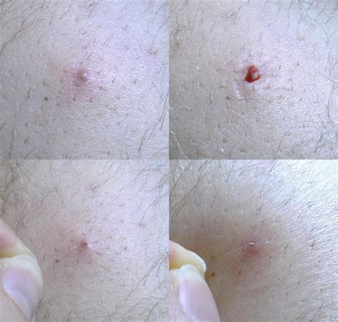 how do you heal ingrown hairs on your chin ingrown pubic hair get rid of it now medimiss