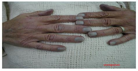 cyanotic nail beds healthy body healthy mind what is hypoxia and its