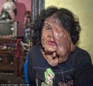 woman with neurofibromatosis covered in tumours she cannot