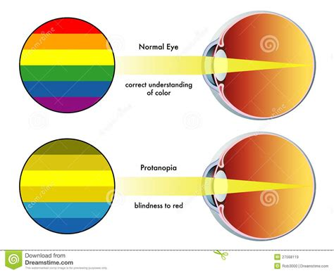 Contact Lens For Blind Eye Protanopia Royalty Free Stock Images Image 27568119