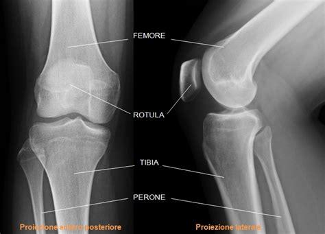 dolore al ginocchio parte laterale interna il ginocchio grasso sporteat