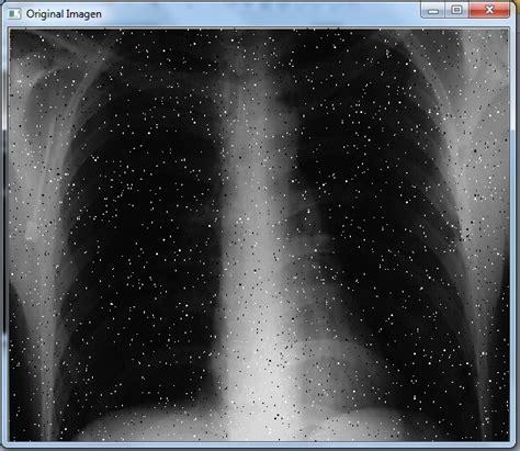 imagenes medicas rayos x eliminaci 243 n de ruido y realzado de im 225 genes medicas rayos