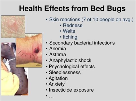 side effects of bed bug bites side effects of bed bug bites 28 images what do bed