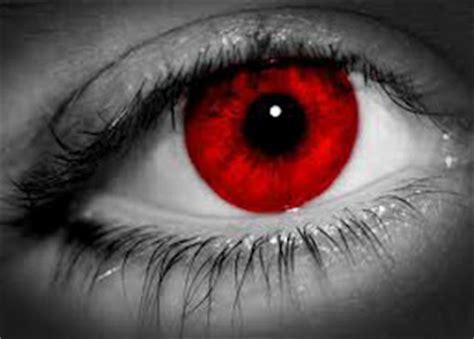 cara mengobati sakit mata venusa69