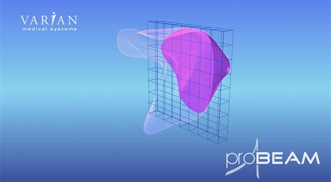Pencil Beam Proton Therapy by Probeam Proton Therapy System