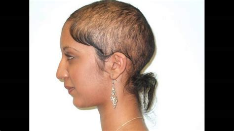 treating hair fall women over 50 scalp infection leads to hair loss treatment options youtube