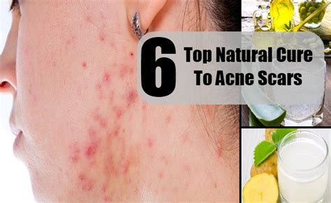 How To Cure Acne Naturally by Top 6 Cure For Acne Scars How To Treat Acne