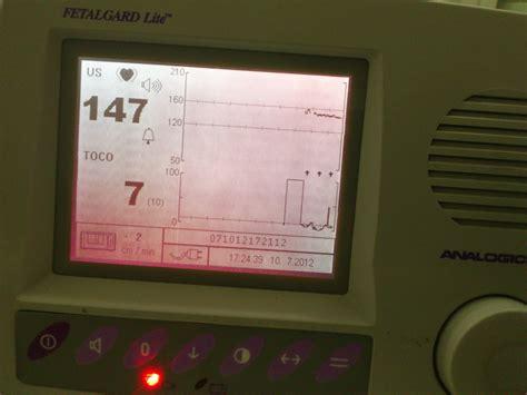 Alat Untuk Mendengarkan Detak Jantung Bayi Dalam Kandungan 36 jam menanti kehadiranmu bidadari berkerudung biru
