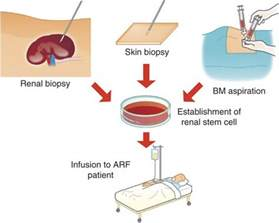 icd 9 code for blindness 47 best images about acute renal failure on