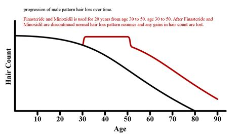 what percentage of men lose hair percentage of bald men preventing reversing male pattern