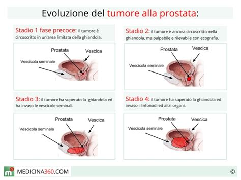 alimenti per prostata ingrossata ecco i sintomi della prostata ingrossata e i rimedi naturali