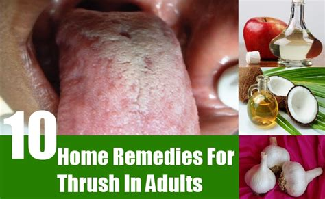 10 home remedies for thrush in adults treatments
