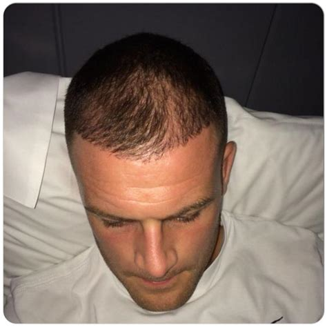 i calciatori pi 249 tatuati superscommesse it anthony stokes transplant hair any celtic fans leigh