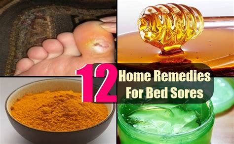 bed sore treatment 12 easy home remedies for bed sores search home remedy