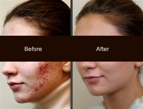 i got rid of all my deep rolling acne scars with msm cream best acne scar treatment in jaipur by resurfx lumeis laser