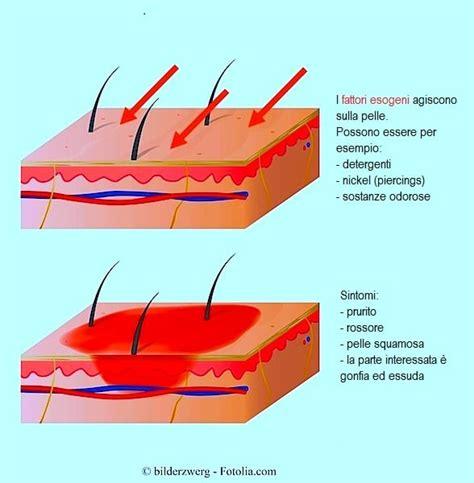 sintomi congestione alimentare sintomi dell allergia nichel acari alimentari glutine