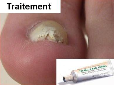 traitement mycose au pied : propranolol avlocardyl