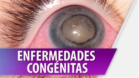 imagenes de enfermedades asombrosas enfermedades cong 233 nitas cosmovision youtube