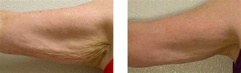 crepey skin on arms tighten skin with thermage in phoenix phoenix skin