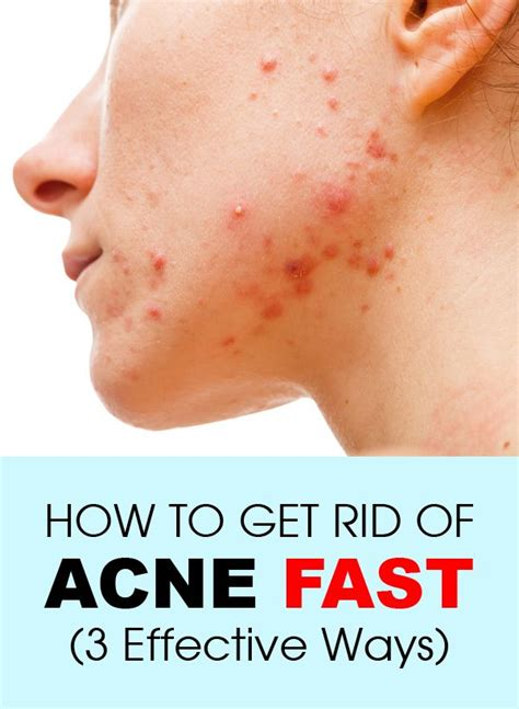 how to get rid of acne fast 3 effective ways clear