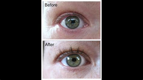 latisse change eye color careprost latisse before after no mascara