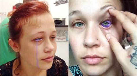tattoo eyes gone wrong model s eyeball tattoo goes wrong left crying purple