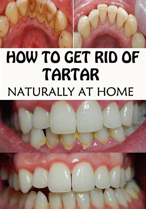 image gallery teeth tartar