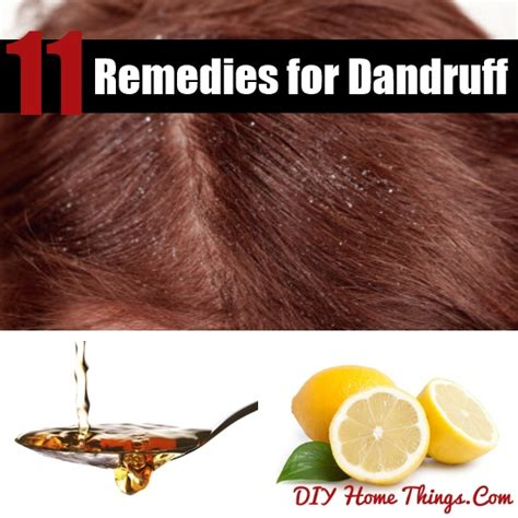 amazing home remedies for dandruff diy home things