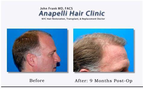 hair transplant jeddah follicular hair transplant pictures for anapelli hair