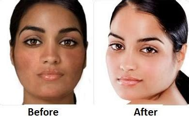 lighten skin fast overnight naturally
