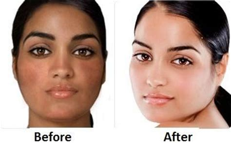 how to lighten skin fast overnight naturally
