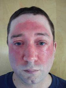 icd 10 swelling of face facial cellulitis causes symptoms treatment icd 10