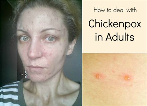 Thanksgiving Side Dishes by How To Deal With Chickenpox In Adults The Seaman Mom