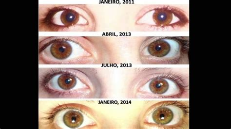 how to lighten eye color is it possible to lighten your eye colour like going from