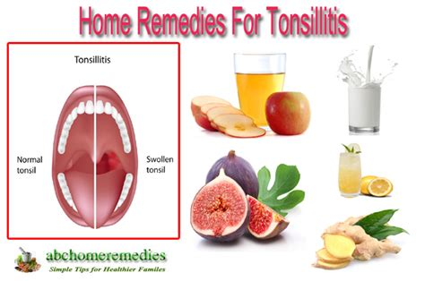 Home Remedies For Tonsillitis by Home Remedies For Tonsillitis