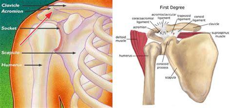 c section shoulder pain acl shoulder