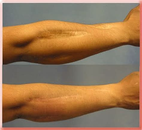 scars keloids and hypertrophic scars aaron stone md