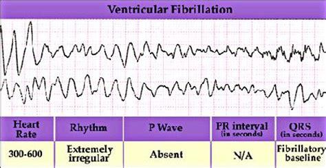 antiarrhythmic drugs, the cardiac vulnerable period