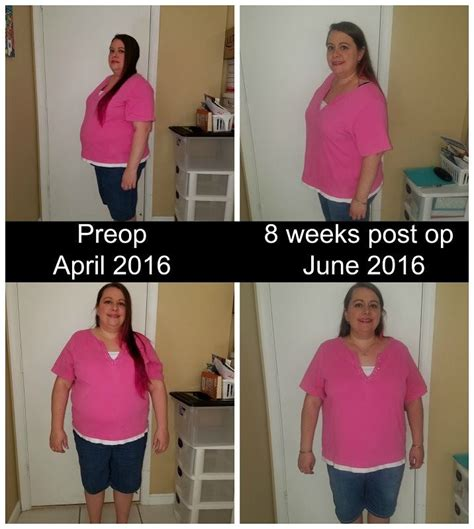 weight loss 6 weeks after gastric sleeve 3 days post op vsg diet dragonposts
