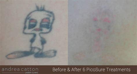 laser tattoo removal preston andrea catton laser clinic burnley