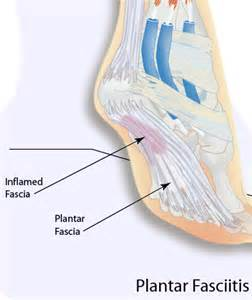 Planters Fasciitis Exercises by Plantar Fasciitis Causes Symptoms And Treatment
