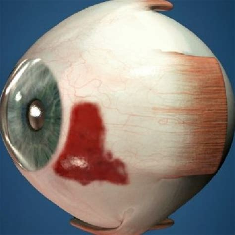 blood in s eye treatments for blood clot in s magazine