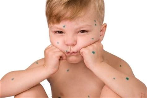wann sind warzen ansteckend anleitung warzen bei kindern behandeln