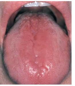 infezione guancia interna glossite