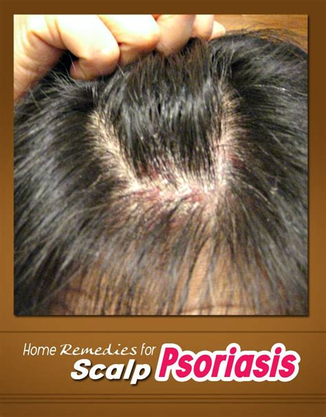best hair for psoriasis home remedies for scalp psoriasis hair styles