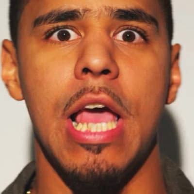 j cole 11 rappers with bad teeth complex