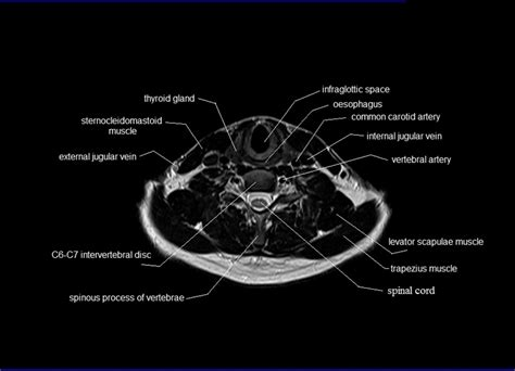 Neck Cross Sectional Anatomy by Mri Neck Anatomy Free Mri Axial Neck Cross Sectional Anatomy
