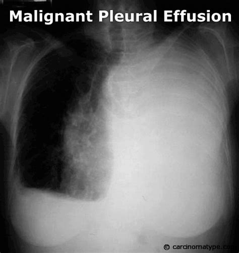 mesothelioma lung x ray histology cxr ct cancer ribbon cytology symptoms commercial malignant