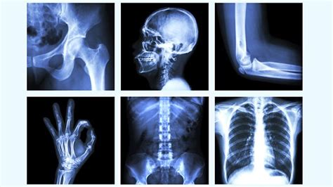Things To Tell Your Doctor by Risks Involved With Osteoporosis And